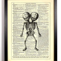 Image of Siamese Twins Skeleton, Vintage Dictionary Print, 8 x 10